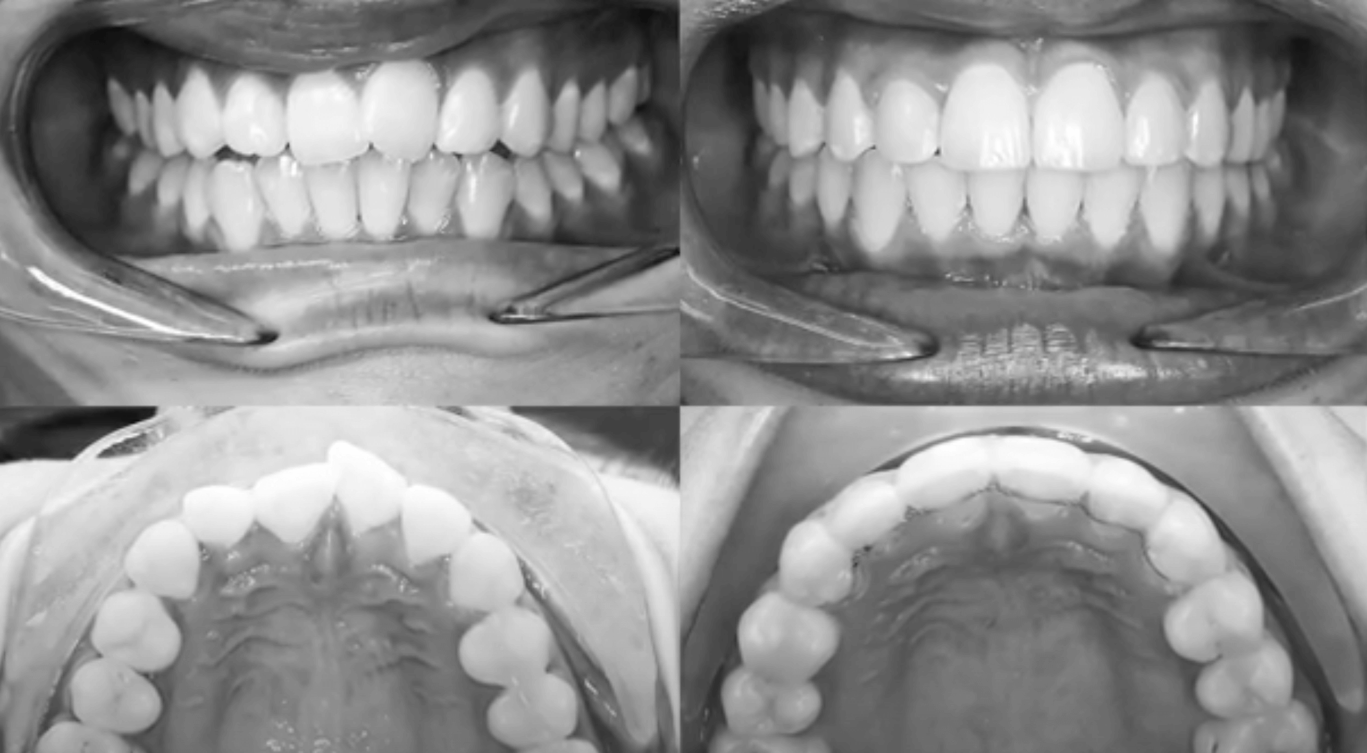 Black and white photos of crooked teeth before and after using aligners