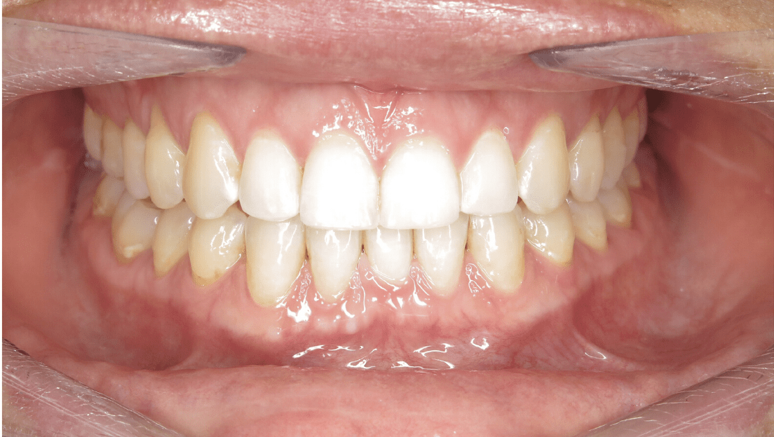 Severe gapping after treatment