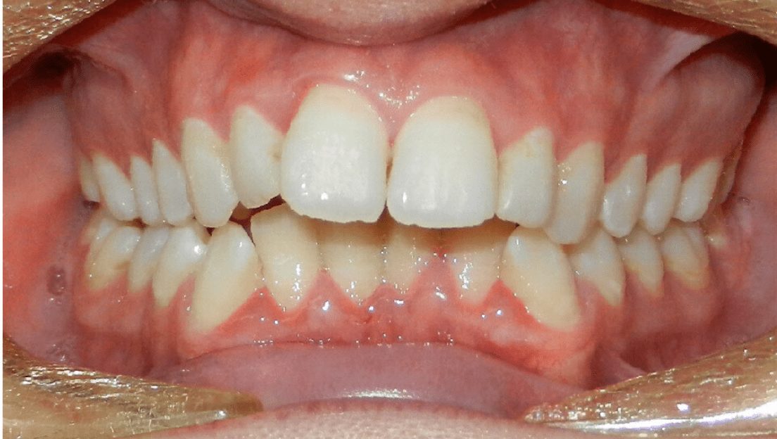 Narrow smile and crossbite issues