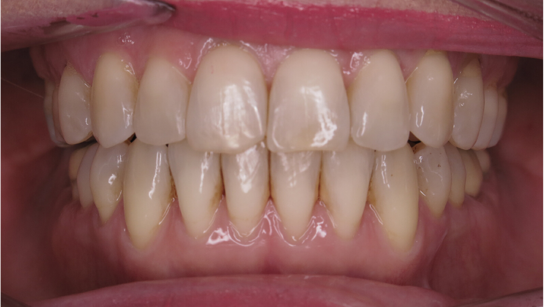 Openbite malocclusion after treament