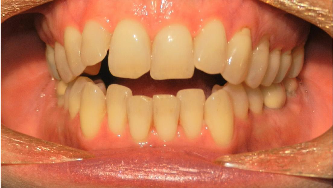 Openbite malocclusion