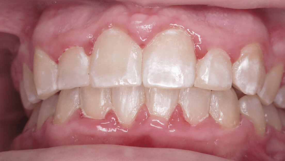 Crowded treatment outcome