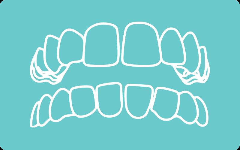 Spacing and Gap Teeth