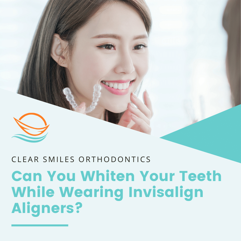 Can You Whiten Your Teeth While Wearing Invisalign Aligners