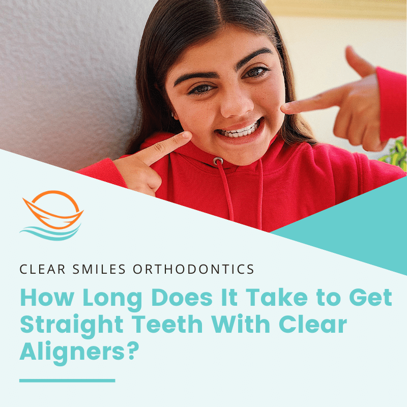 How Long Does It Take to Get Straight Teeth With Clear Aligners?