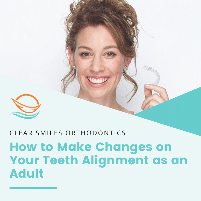 How to Make Changes on Your Teeth Alignment as an Adult