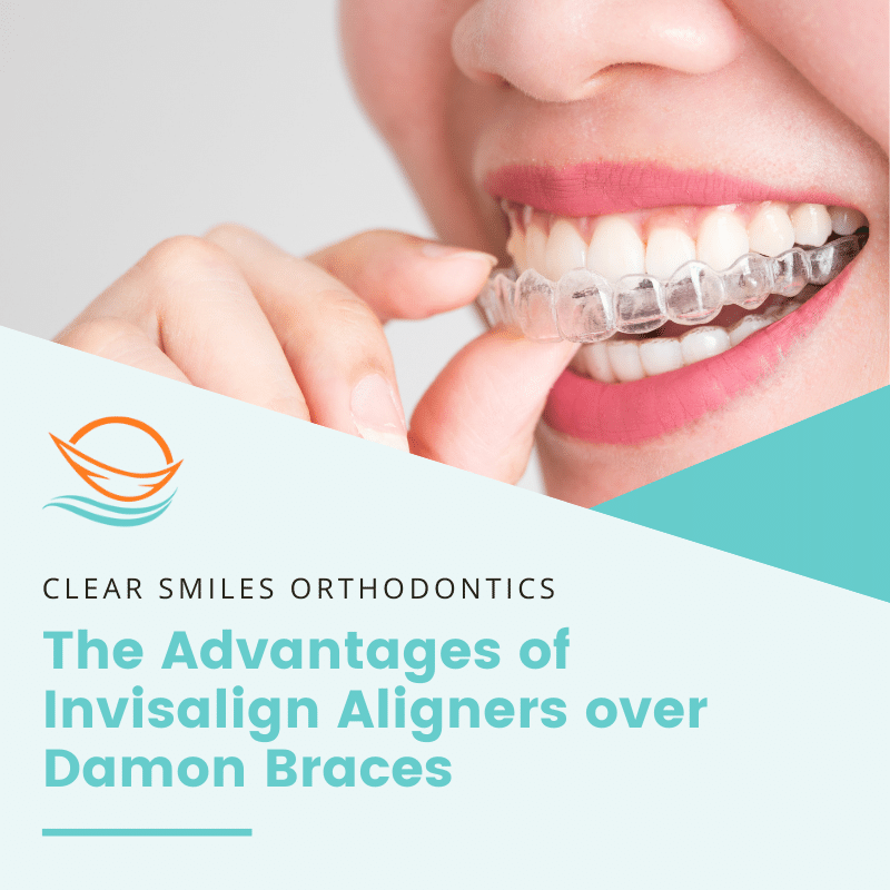 The Advantages of Invisalign Aligners over Damon Braces
