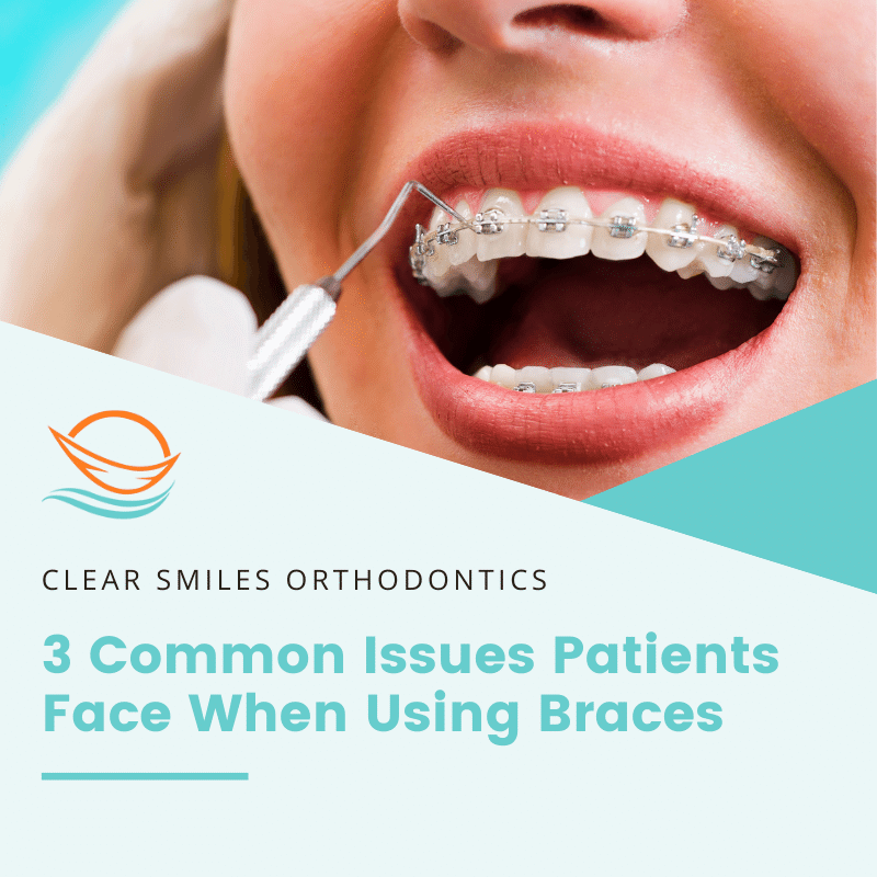 3 common issues patients face when using braces