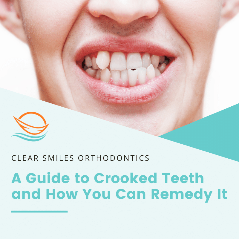 A Guide to Crooked Teeth and How You Can Remedy It