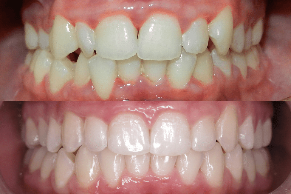 Patient Before and Afters