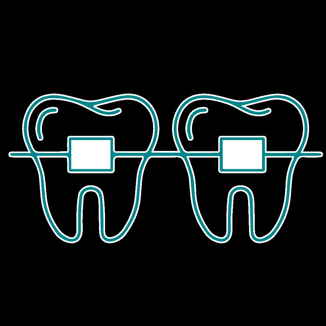 Illustration of adult braces