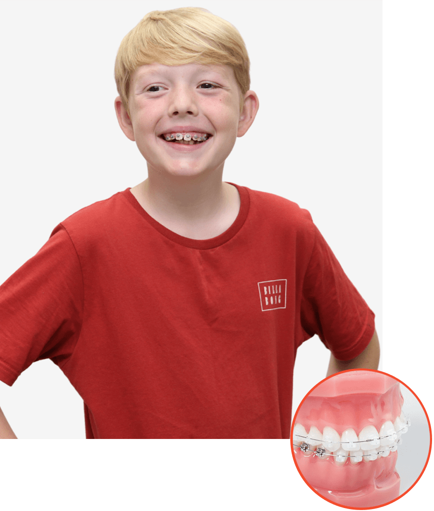 Young boy smiling with clear braces on
