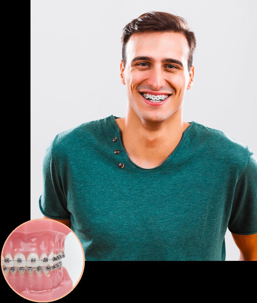 Man smiling wearing braces