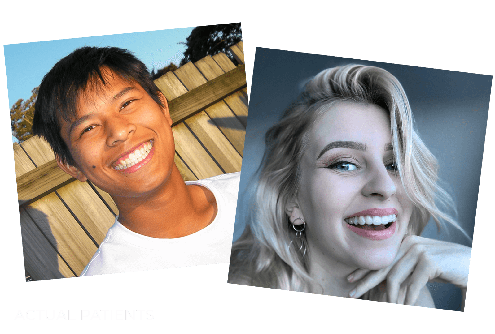 Images of teenage patients who have received dental services from Clear Smiles Orthodontics